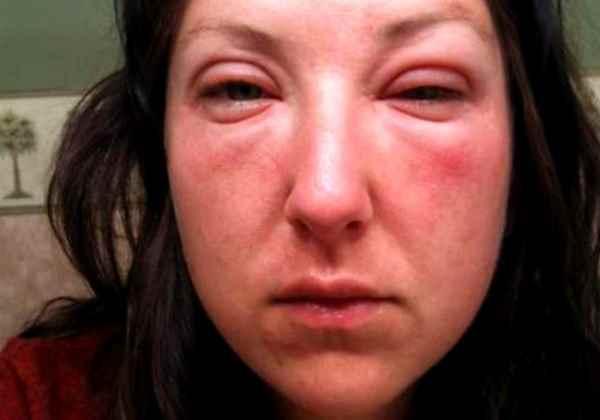 Почему опухает лицо после пьянки