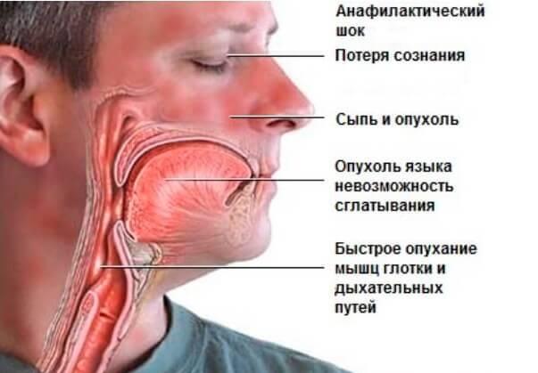 Отек Квинке симптоматика