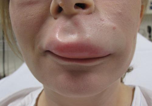 Алкоголь после уколов с гиалуроновой кислотой: какие последствия