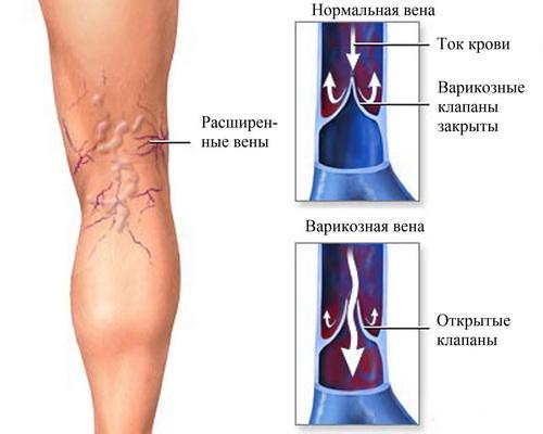 Признаки увеличения прохода кровяных сосудов