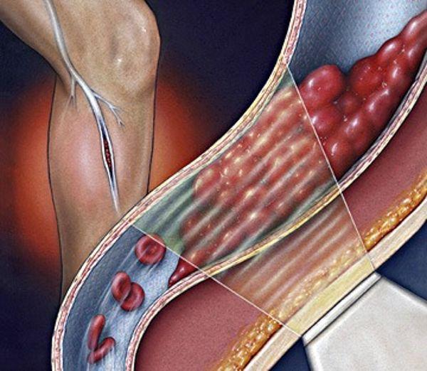 Щитовидная железа и алкоголь