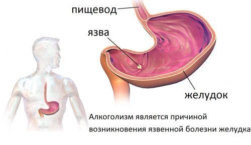 лечение алкоголизма в спб по методу довженко