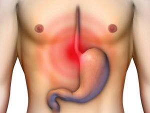 Жжение обычно вызвано ожогом стенок желудка или пищевода