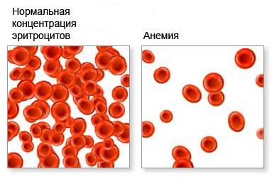 Агглютинация, склеивание эритроцитов приводит к тромбозам и гангренам