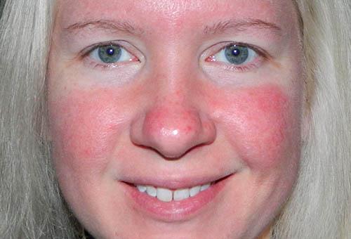аллергия на лице красные пятна чешутся