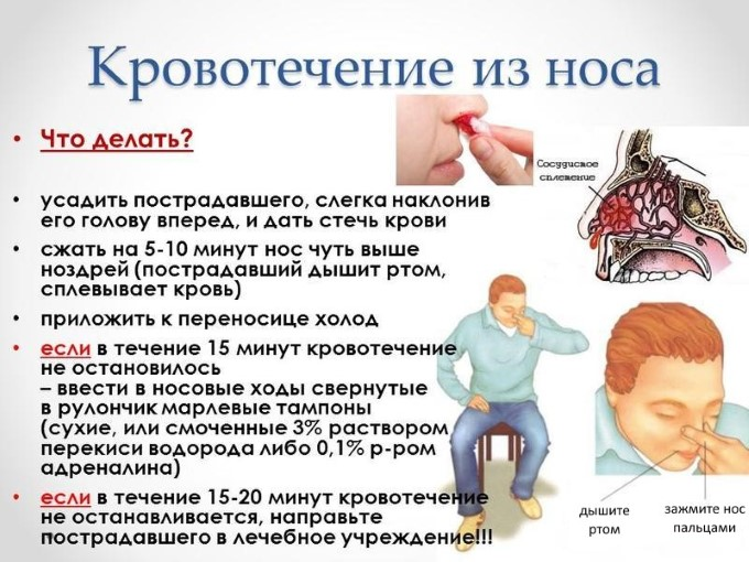 Правила при кровотечениях из носа