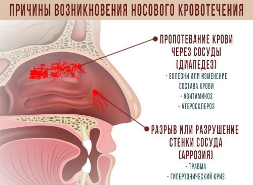 Кровь из носа при употреблении алкоголя thumbnail